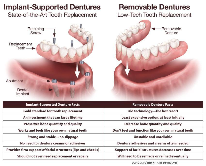 diagram comparison of dentures | all-on-4 dental implants Elk Grove Village