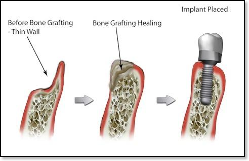 bone grafting diagram | Bone Grafting Elk Grove Village