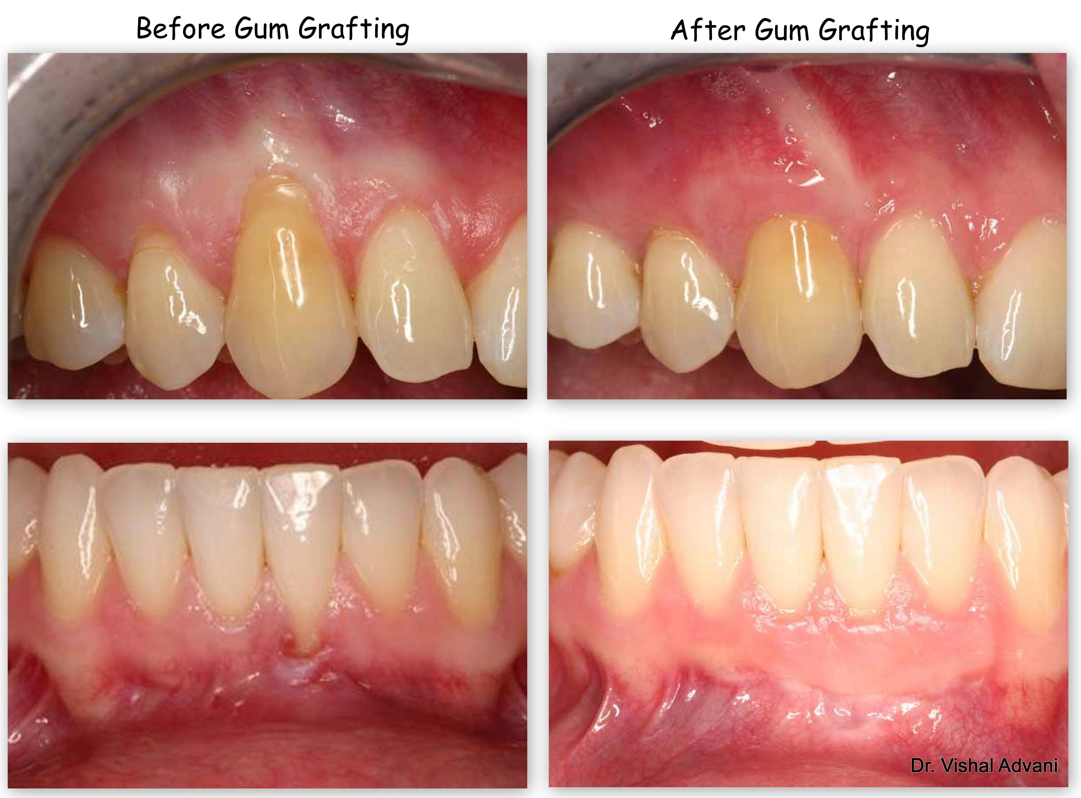 Gum Disease Treatment Smile Gallery | Ramsey A. Amin, DDS