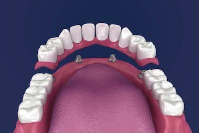 All On 4 Implants Elk Grove Village Il Full Mouth Dentures