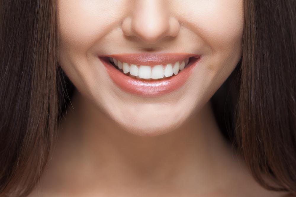 Veneers | Elk Grove Smile Center