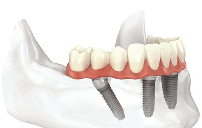 All-on-4 Dental Implants Elk Grove Village IL