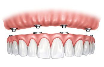 All-on-4 Dental Implants
