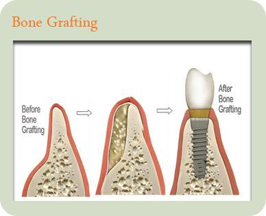 dentist elk grove village | bone grafting elk grove village