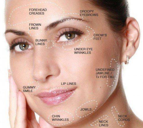 woman with areas of face labeled | botox elk grove village