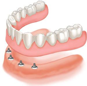 Dental Implants Elk Grove Village