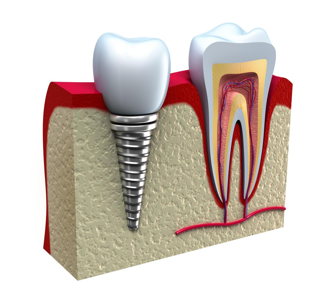 implant dentist elk grove village | cost dentures elk grove village