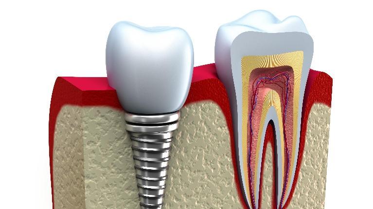 dental implant dentist | Elk Grove Village