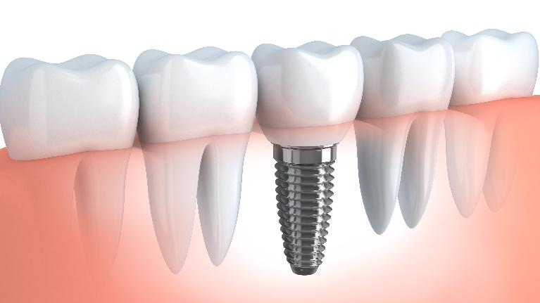dental implants elk grov