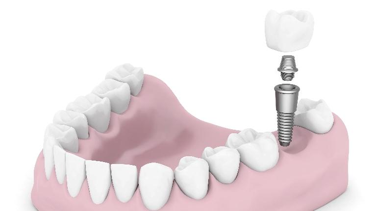 dental implants elk grove village il