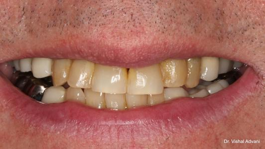 before teeth whitening in elk grove village il