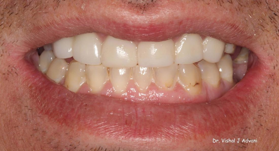 Crowns on Front Teeth to Fix Dark, Chipped Teeth