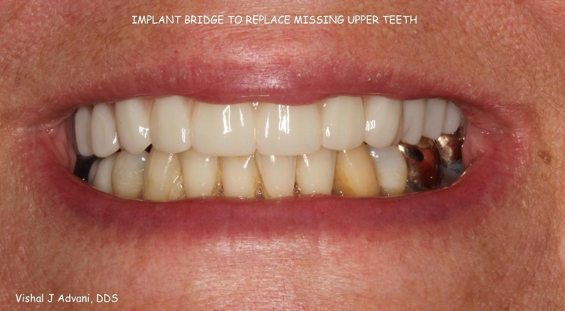 Implant Bridge to replace missing upper teeth