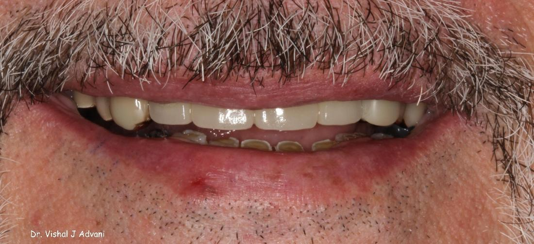 Implants and Cosmetic Bridge to Replace Missing Teeth