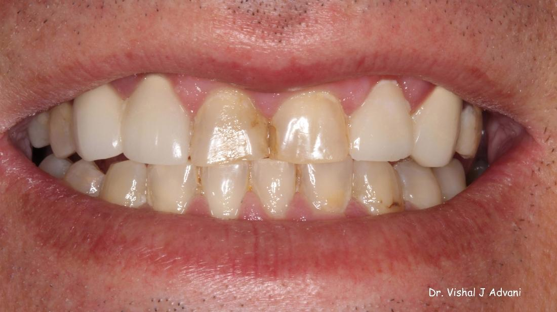 before dental crowns elk grove village il
