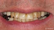 In-Office-Whitening-in-Elk-Grove-IL-Before-Image