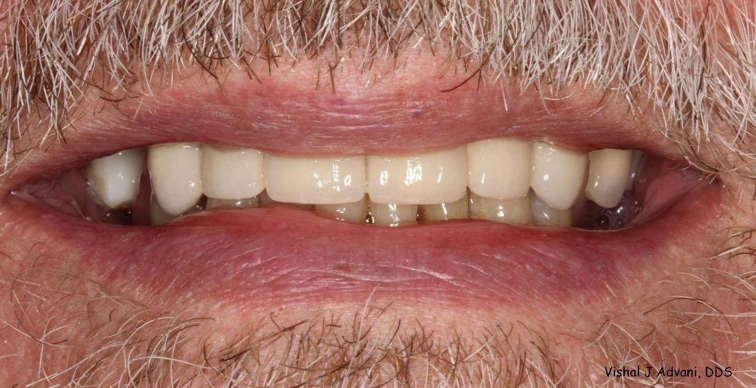 Cosmetic Dentistry - All-Ceramic Bridge and White Tooth-colored Filling