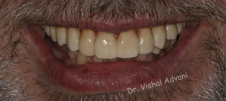 All-on-5-Dental-Implants-to-Replace-Upper-Missing-Teeth-After-Image