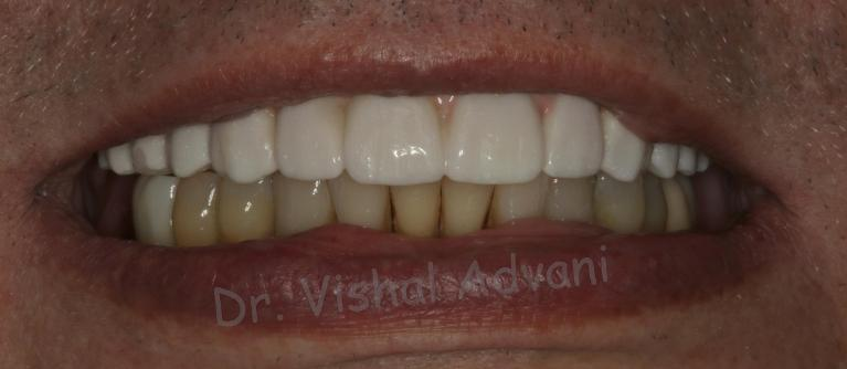 Teeth-in-a-Day-All-on-4-Dental-Implants-After-Image