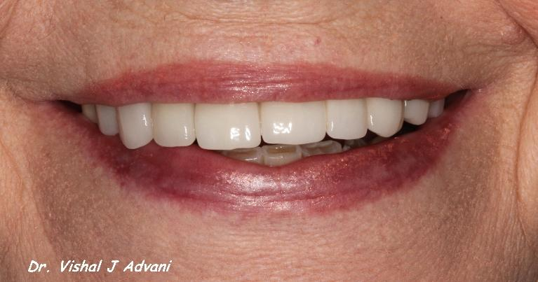 same day extraction and dental implant elk grove village il