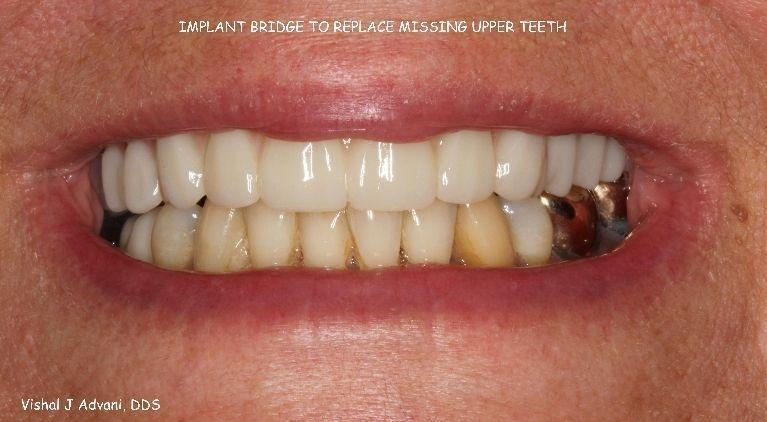 Implant-Bridge-to-replace-missing-upper-teeth-After-Image