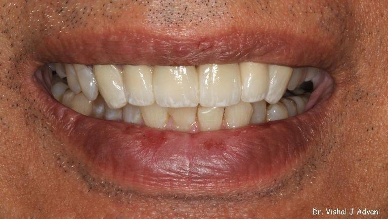 porcelain veneers elk grove village il