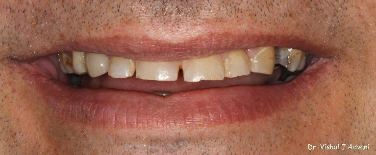 Extraction-of-Front-Tooth-and-replacement-with-an-Implant-and-Crown-After-Image