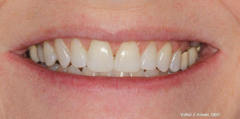 Short-term-Orthodontic-Treatment-4-5-months-After-Image