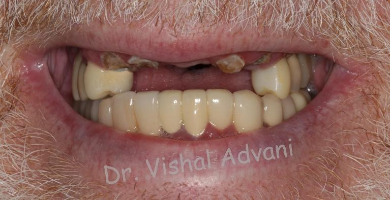 Broken-front-teeth-replaced-with-implants-Before-Image