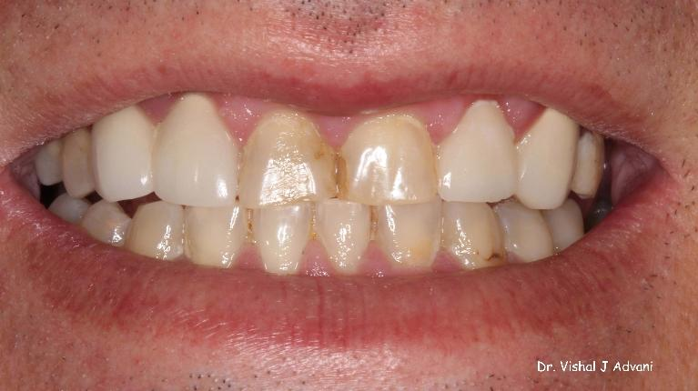 Crowns-on-Front-Teeth-to-Fix-Dark-Chipped-Teeth-Before-Image