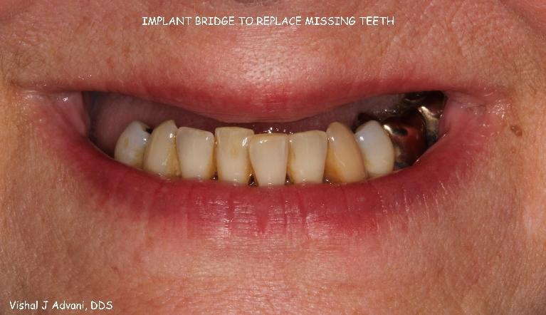 Implant-Bridge-to-replace-missing-upper-teeth-Before-Image