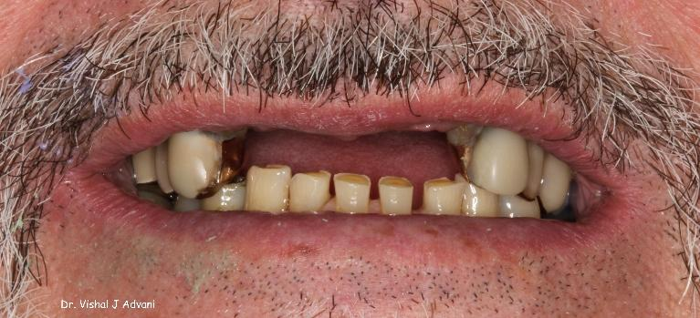 Implants-and-Cosmetic-Bridge-to-Replace-Missing-Teeth-Before-Image