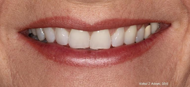 Short-term-Orthodontic-Treatment-4-5-months-Before-Image