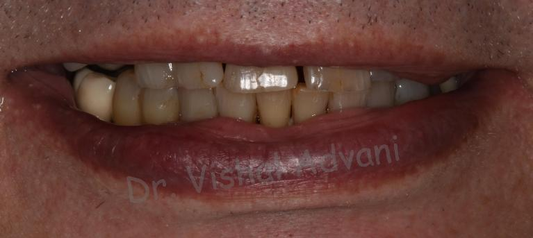 Teeth-in-a-Day-All-on-4-Dental-Implants-Before-Image