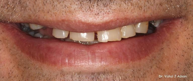 Extraction-of-Front-Tooth-and-replacement-with-an-Implant-and-Crown-Before-Image