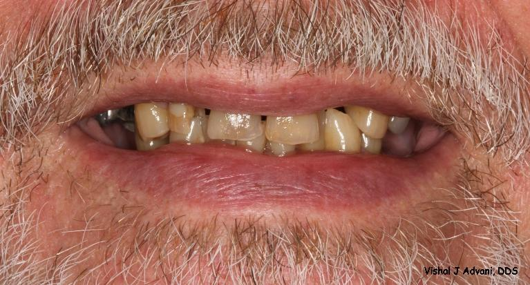 Cosmetic-Dentistry-All-Ceramic-Bridge-and-White-Tooth-colored-Filling-Before-Image
