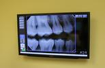 x-rays in our exam room at Elk Grove Smile Center
